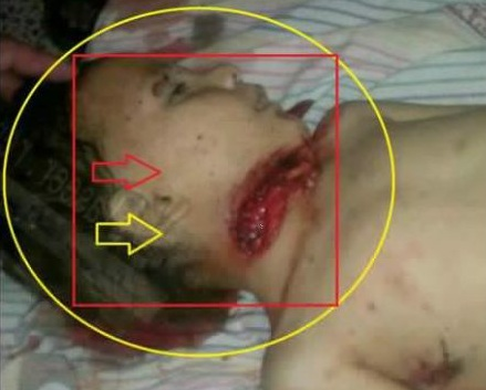 Same ritual murder (typical of cannibals groups affiliated with al-Qaeda and al-Nusra Front), with throats cut and bodies cut into pieces, it is reported in Banjas as evidenced by these pictures (archive)